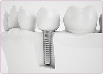 Dentist Etobicoke - Dental Implants